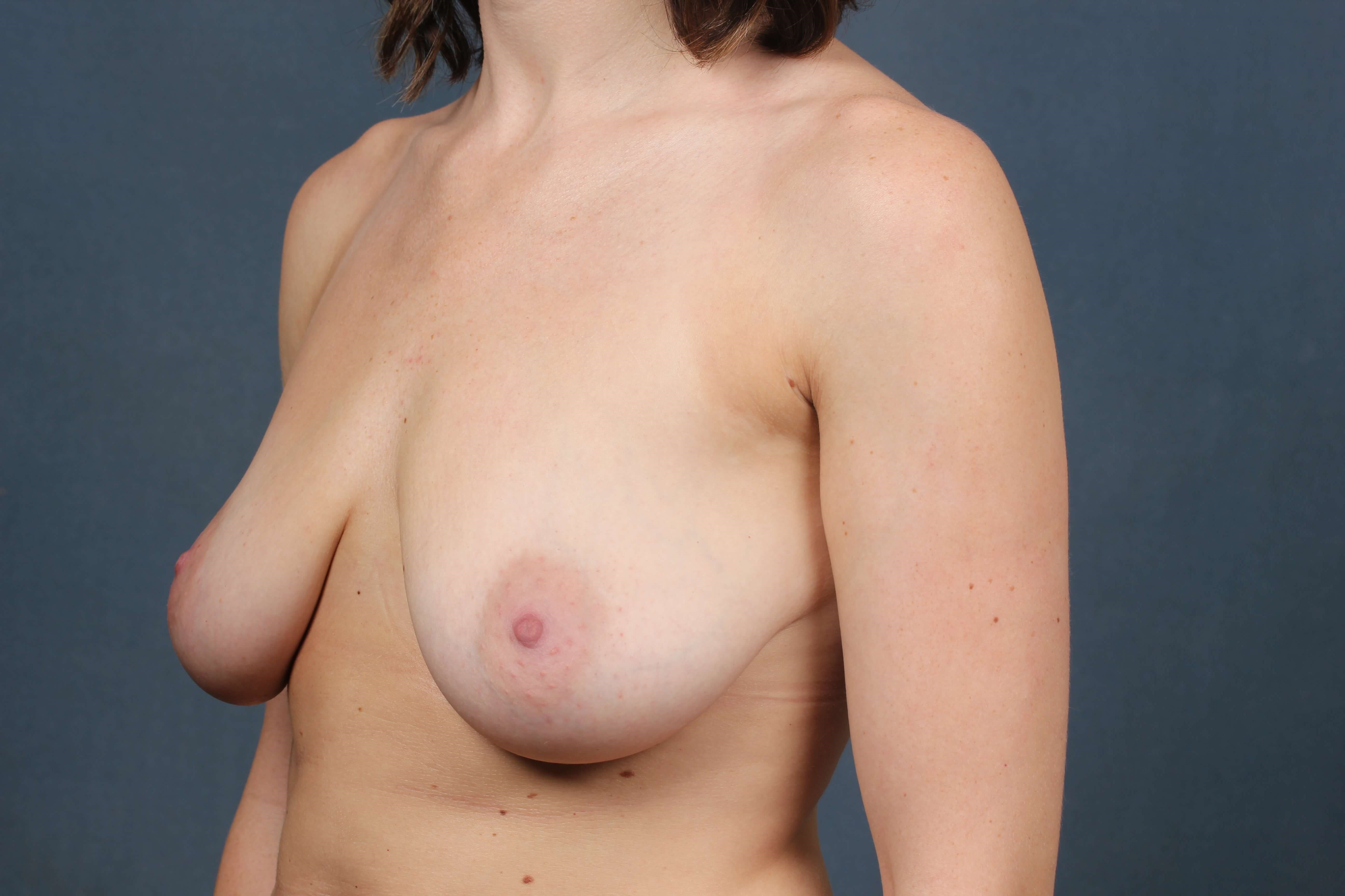 Mastopexy Augmentation Before