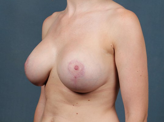 Mastopexy Augmentation After