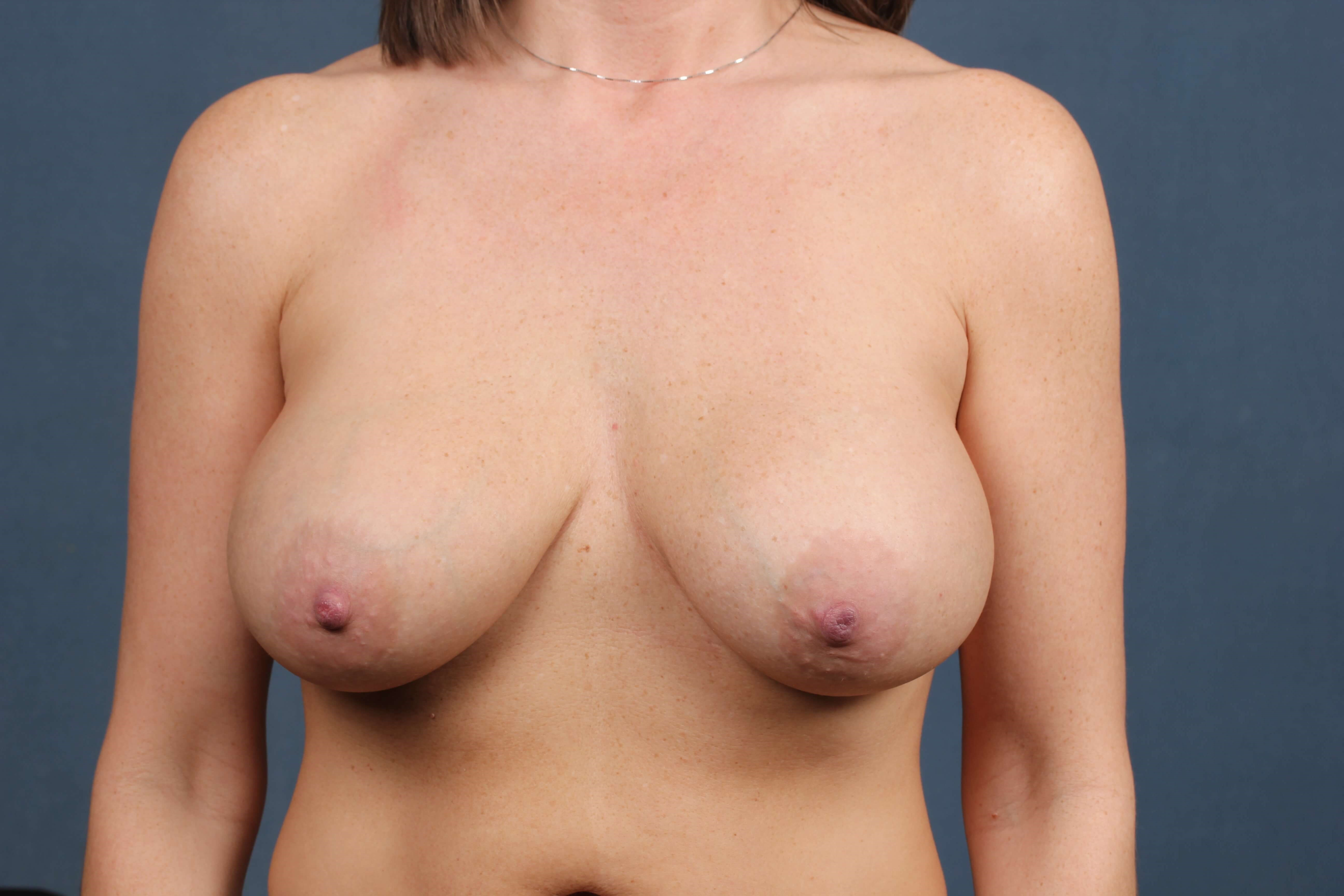 Breast lift Before