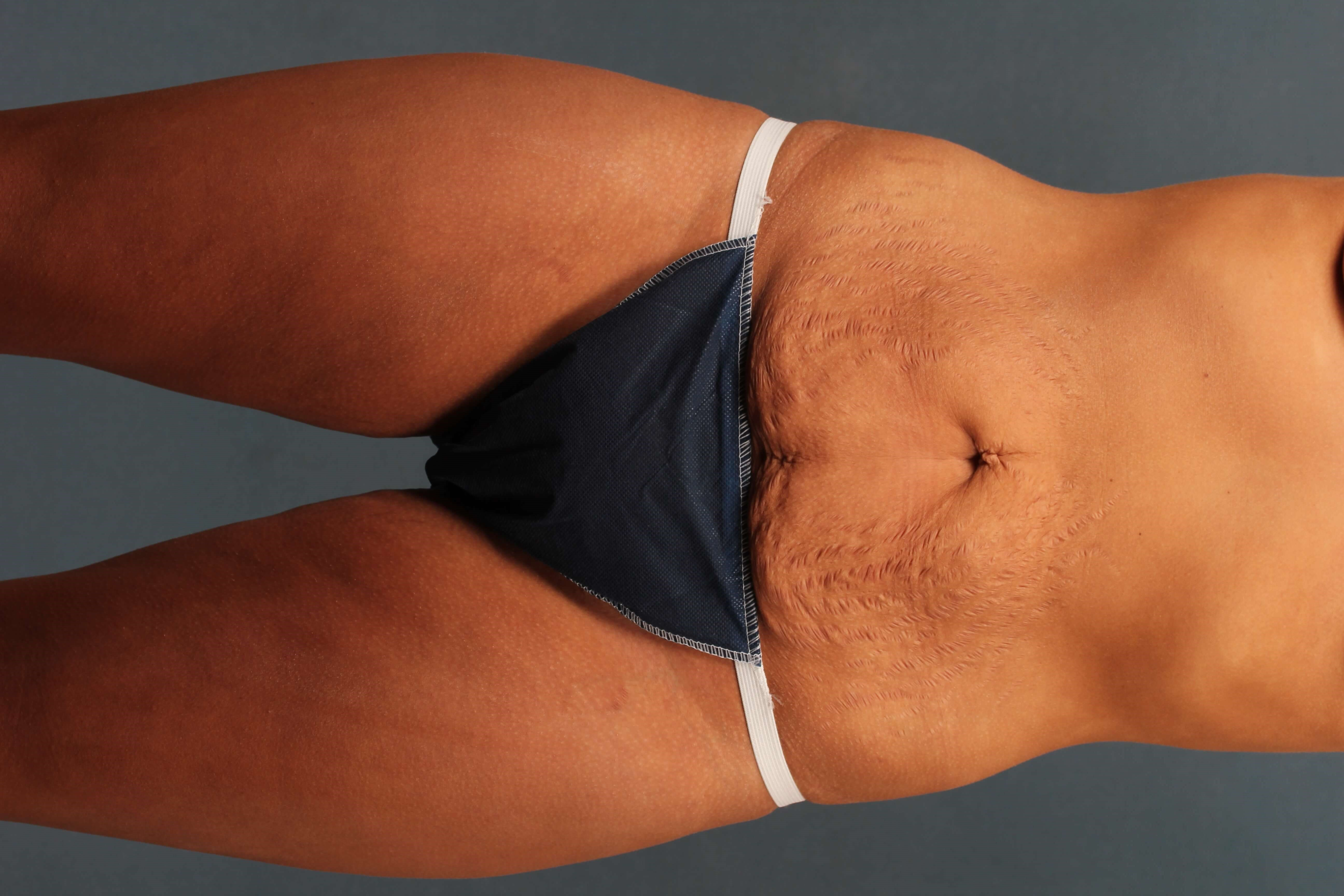 Abdominoplasty without drains Before