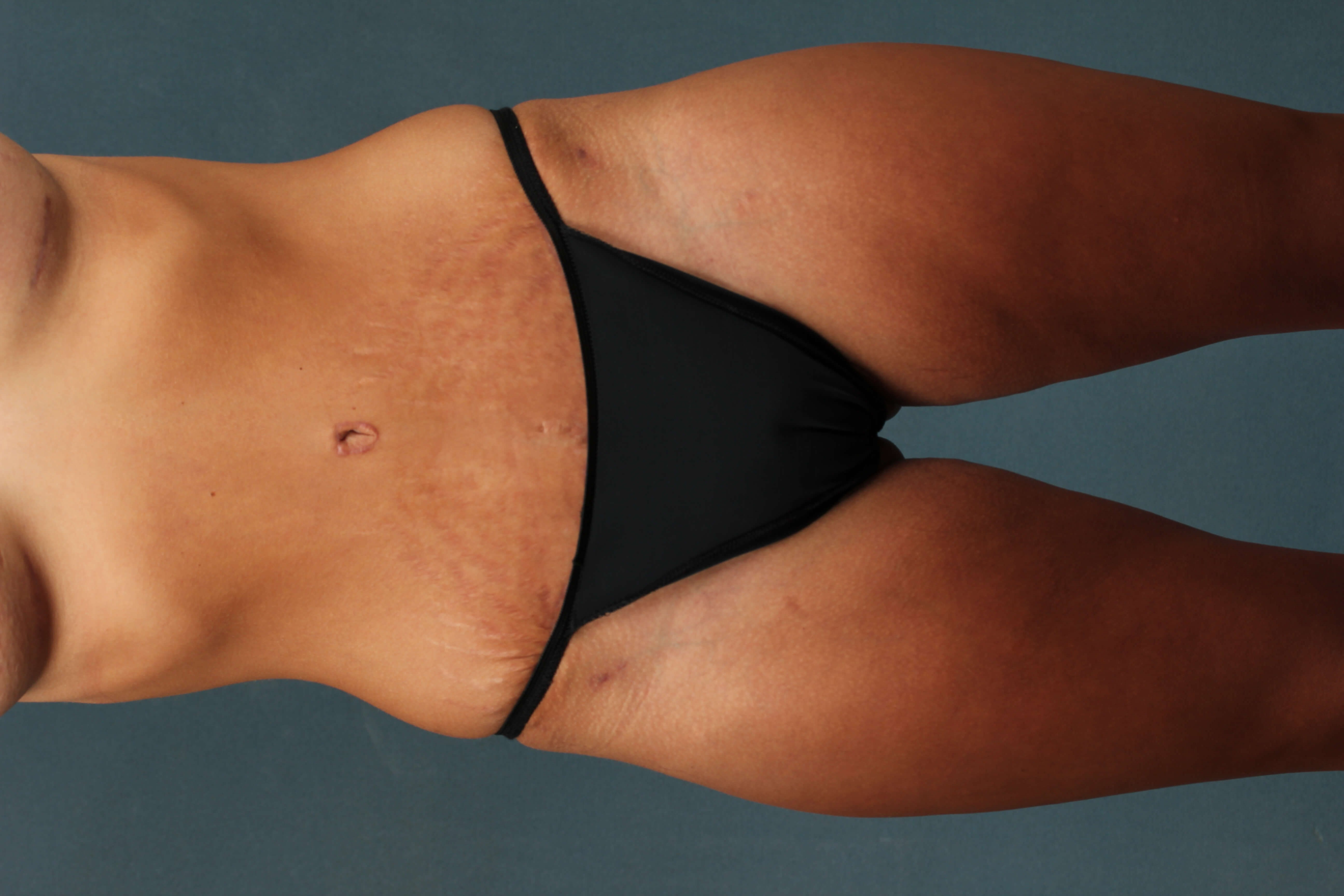 Abdominoplasty without drains After