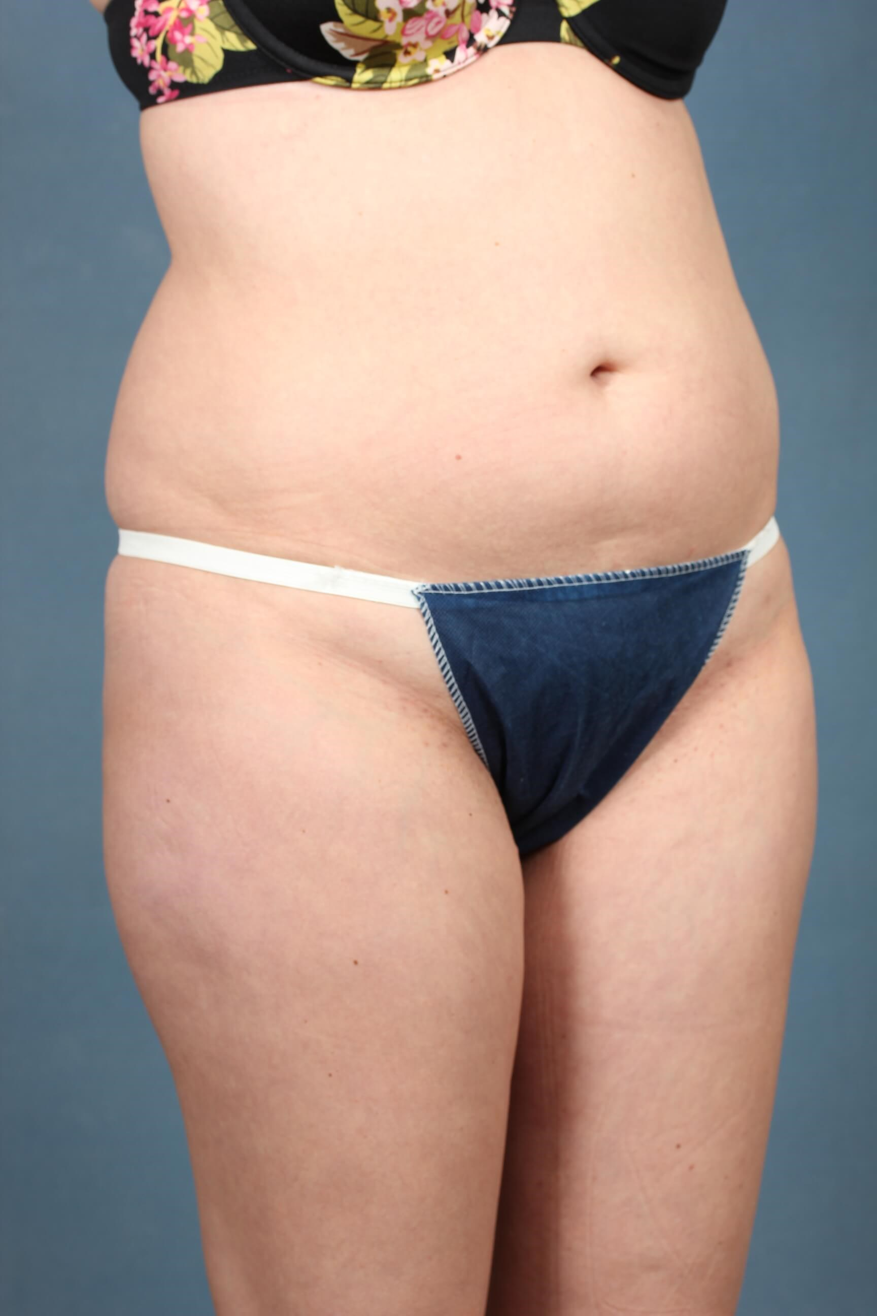 Tummy tuck in Louisville,KY Before