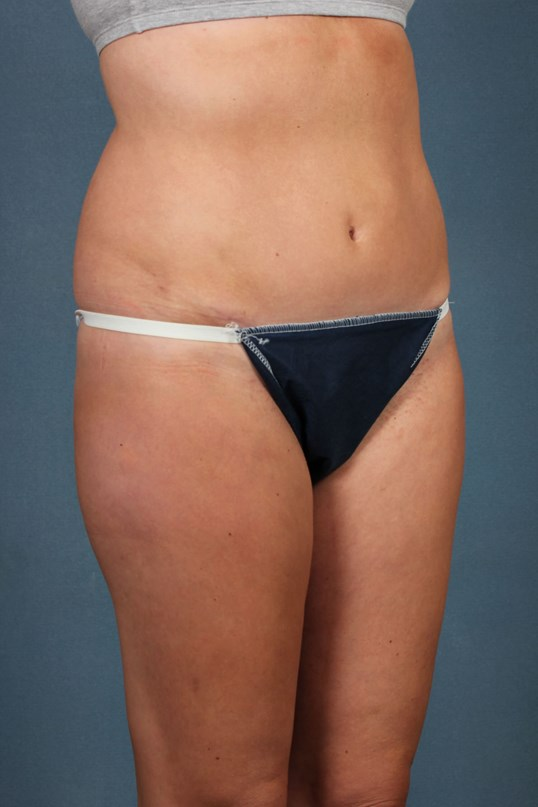 Tummy tuck in Louisville,KY After
