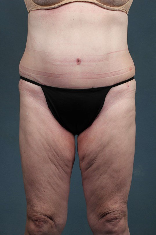 Tummy tuck with mons reduction After