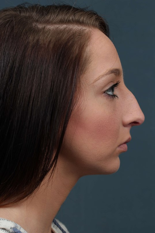 lady seeks Nose job in KY Before