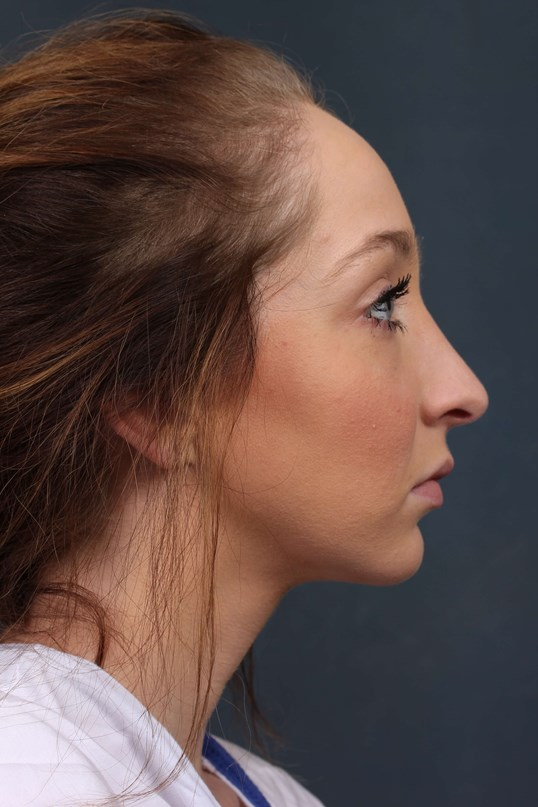 lady seeks Nose job in KY After