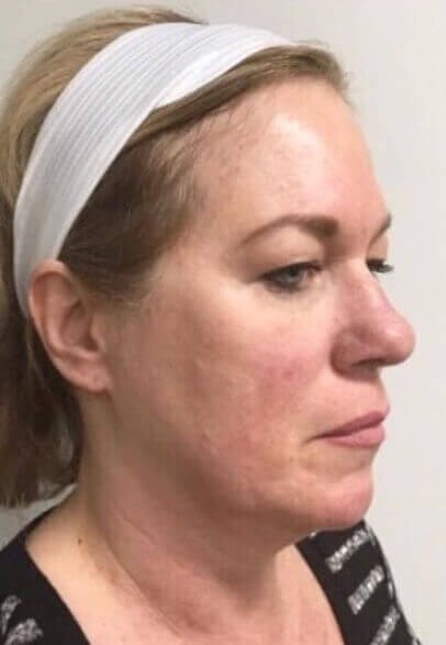 FaceTite Facial Rejuvenation Before